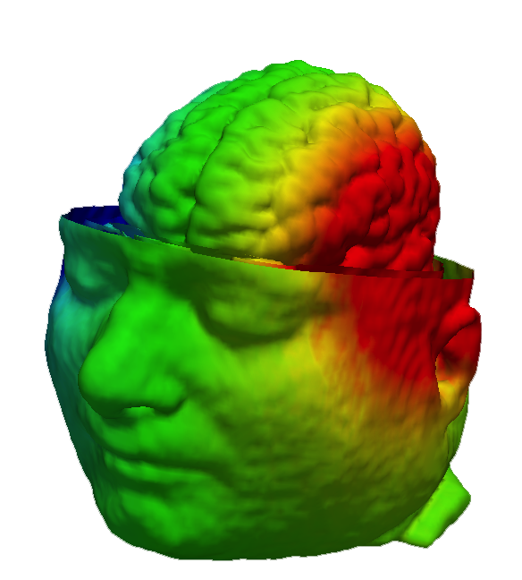 Electrical Impedance Tomography image of a head scan.