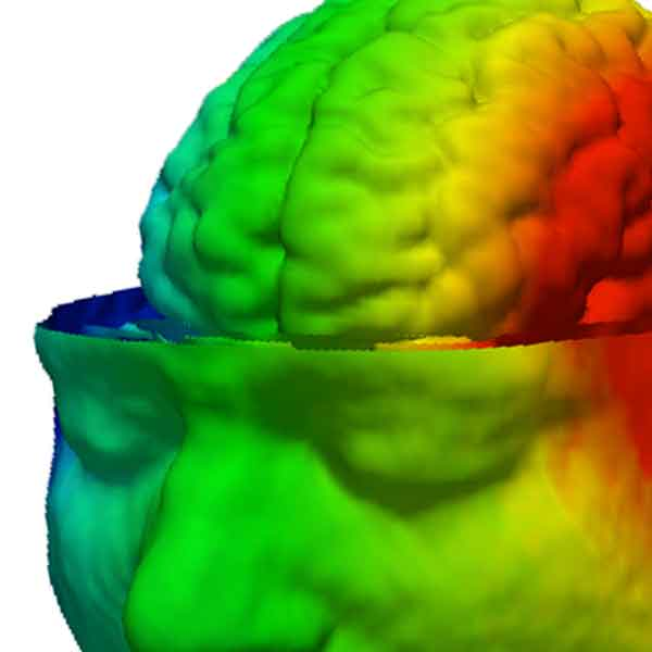 Imagery from Electrical Impedance Tomography project.