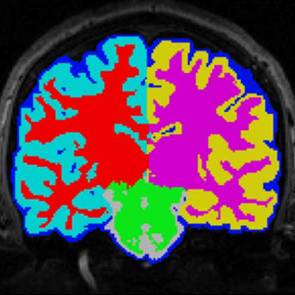 Imagery from Brain Segmentation project.